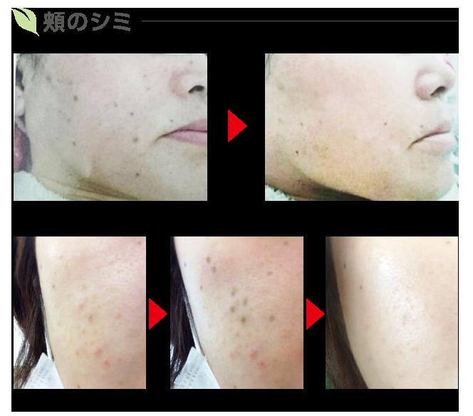 頬のシミの変化